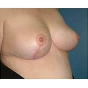 How Much Does Breast Reduction Cost? - RealSelfcom
