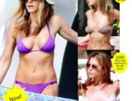 Jen's Mexican boob job!