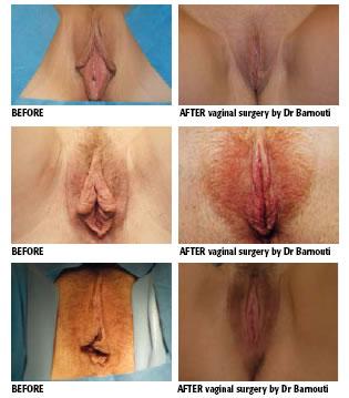 Women's Genital Surgery