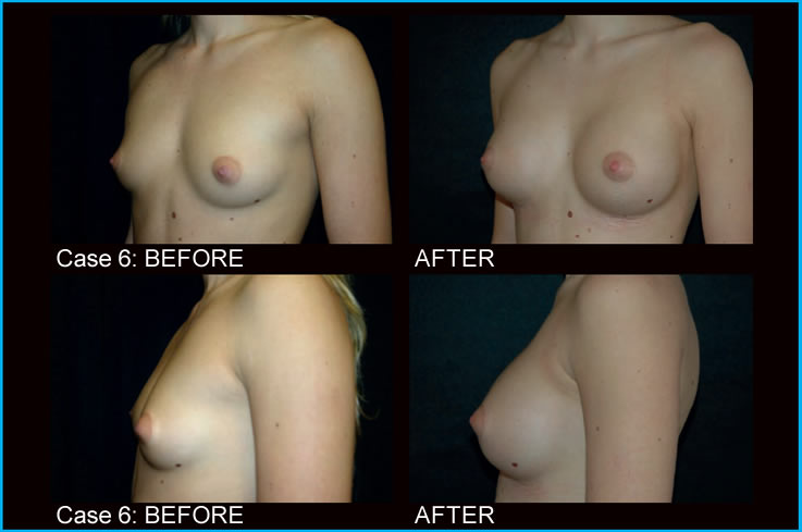 breast-augmentation-
